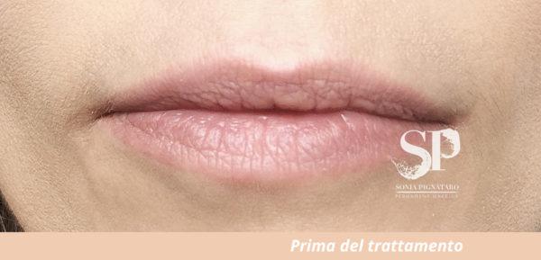 Labbra prima del trattamento estetico