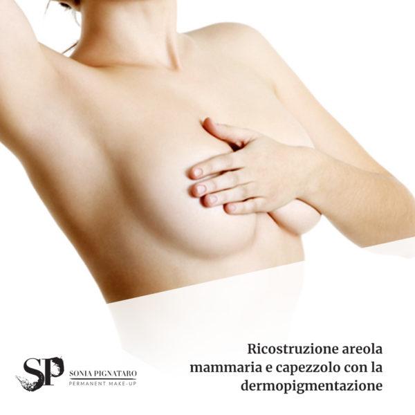 Ricostruzione areola mammaria a Roma