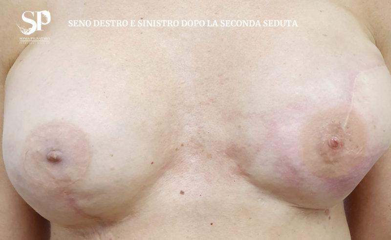 Ricostruzione dell'areola mammaria e del capezzolo