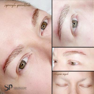 Sopracciglia iperrealistiche su alopecia causata dalla chemioterapia