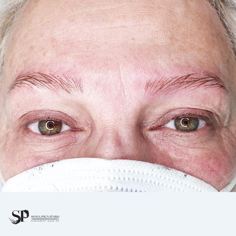 Sopracciglia iperrealistiche eseguite su alopecia tramite dermopigmentazione