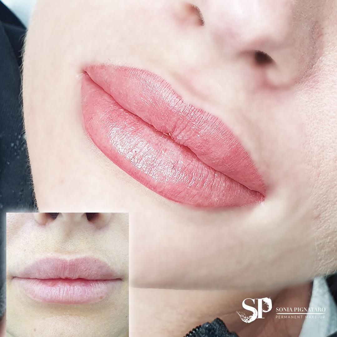 Aquarelle lips, risultato dopo la prima seduta